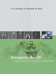 Röntgenhelfer 3D: Handbuch intraoperative 3D-Bildgebung mit mobilen C-Bögen